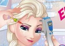 冰雪奇緣艾莎看眼科