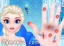 冰雪奇緣艾莎手凍傷